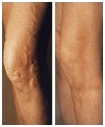 Varicose Veins Oxford Interventional Radiology